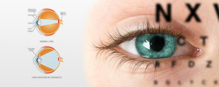 Effet de la curcumine sur la cataracte