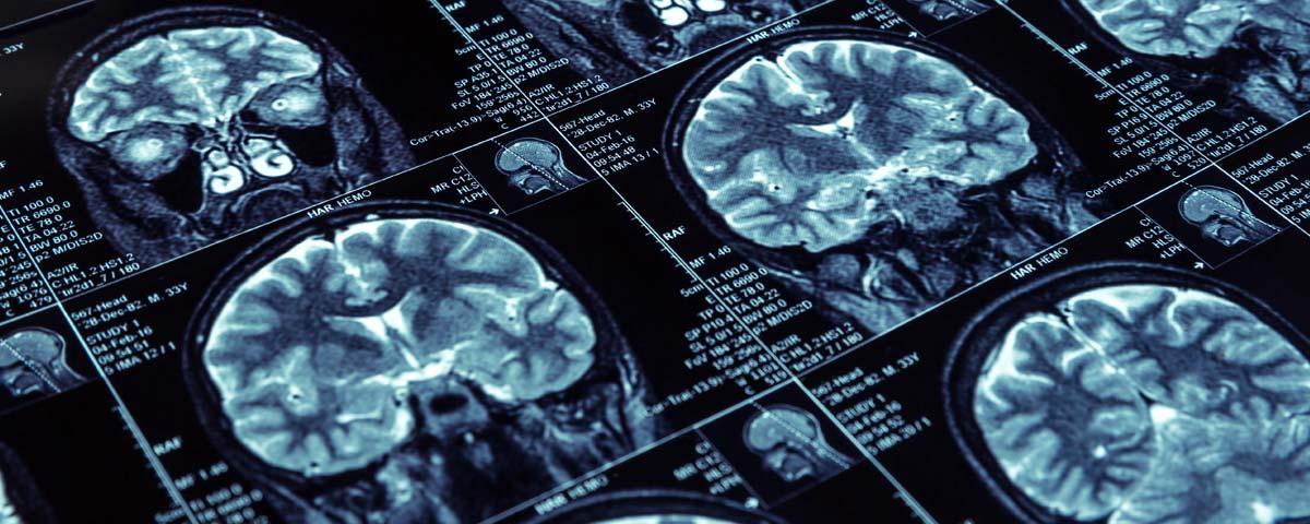 Radio du cerveau