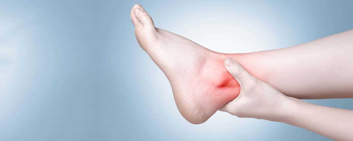 Arthrite cheville
